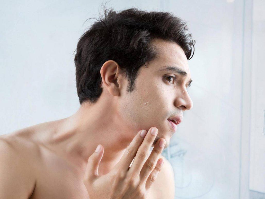 Bước cuối cùng chăm sóc da là khoá ẩm